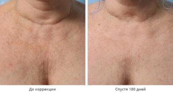 Альтеротерапия фото до и после