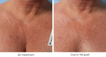 Ulthera до и после