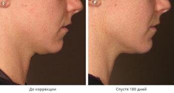 Ulthera фото до и после