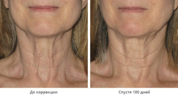 Ulthera system до и после