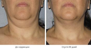 Ulthera system фото до и после