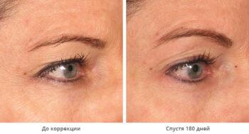 Ulthera system глаза