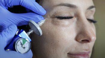 газовые уколы карбокситерапия
