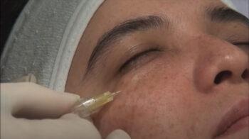 газовые уколы на лицо