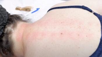 газовые уколы при остеохондрозе