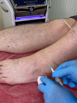 карбокситерапия для голеностопного сустава сколько стоит