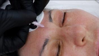 карбокситерапия для лица аппаратная