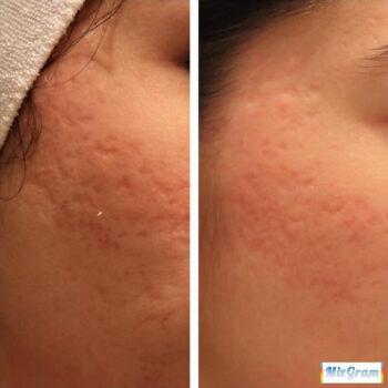 карбокситерапия для лица до и после фото