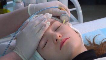 карбокситерапия для лица фото