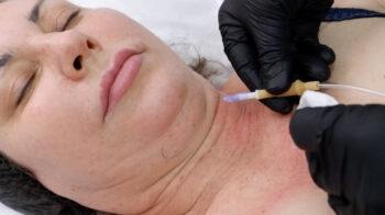 карбокситерапия для лица инъекционная от второго подбородка