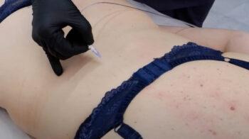 карбокситерапия для спины и позвоночника