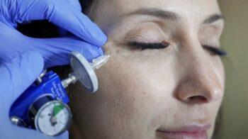 карбокситерапия для век