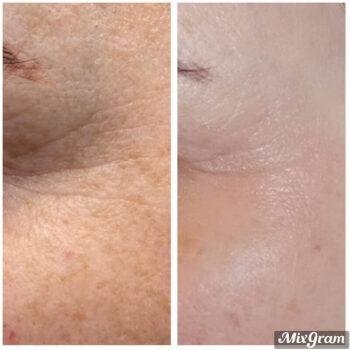 карбокситерапия фото до и после лицо