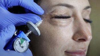 карбокситерапия инъекционная для лица