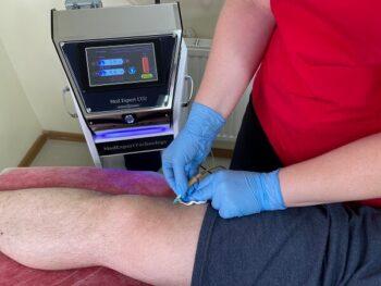 карбокситерапия коленного сустава