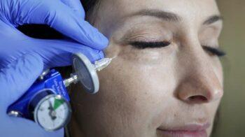 карбокситерапия кожи лица