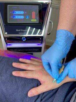 карбокситерапия лечение суставов