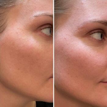 карбокситерапия лица до и после