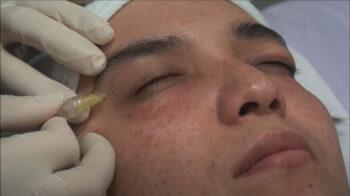карбокситерапия лицо