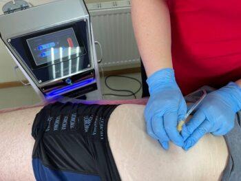 карбокситерапия тазобедренного сустава