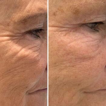 лицо после карбокситерапии