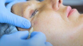 процедура карбокситерапия для лица