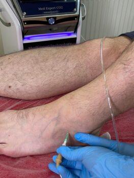 уколы в сустав карбокситерапия