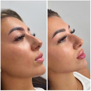 1 мл филлера в губы фото до и после