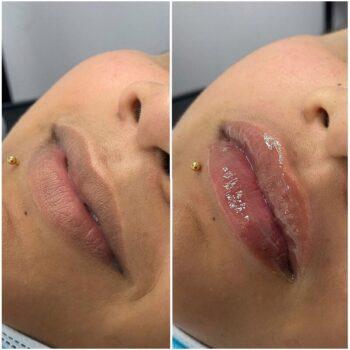 губы филлером до после фото