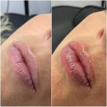 губы после 1 мл филлера до после