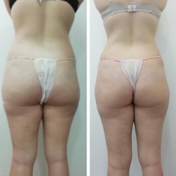 вакуумно роликовый массаж отзывы фото до и после