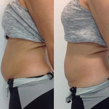 вакуумно-роликовый массаж до и после фото