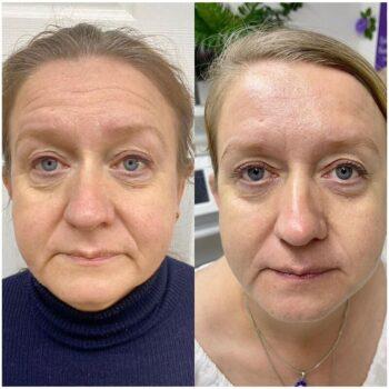 вакуумный массаж для лица отзывы фото до и после