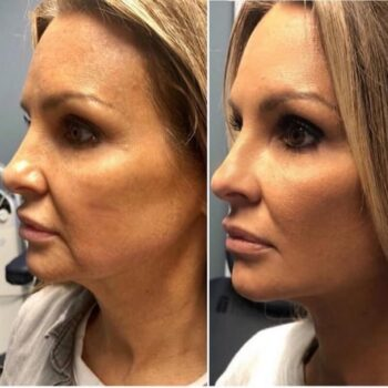 вакуумный массаж лица аппаратом отзывы фото до и после