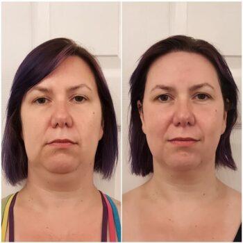 вакуумный массаж лица до и после