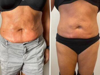 вакуумный массаж живота аппаратом фото до и после