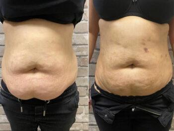 вакуумный массаж живота для похудения отзывы фото
