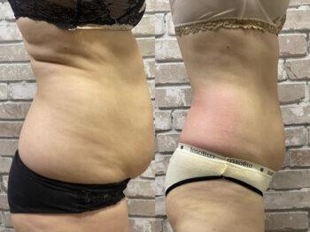 вакуумный массаж живота до и после фото