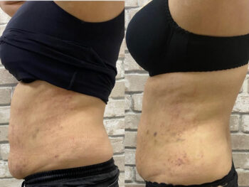 вакуумный массаж живота до и после фото отзывы