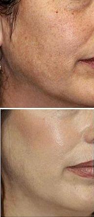 Пилинг молочной кислотой до и после