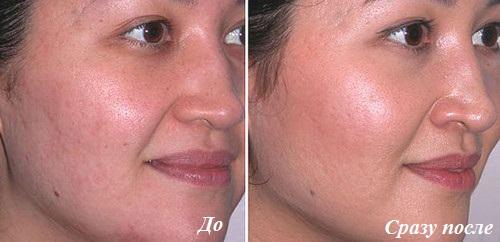 чистка лица до и после