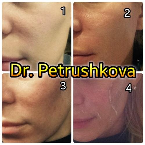 Пилинг лица в Краснодаре у косметолога