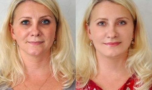Мезотерапия лица в Краснодаре
