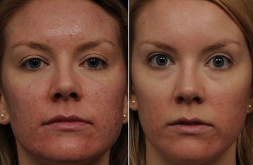 мезотерапия лица у косметолога