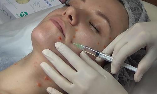 Биостимуляция кожи. Краснодар.