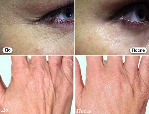Биостимуляция кожи Skin B до и после.