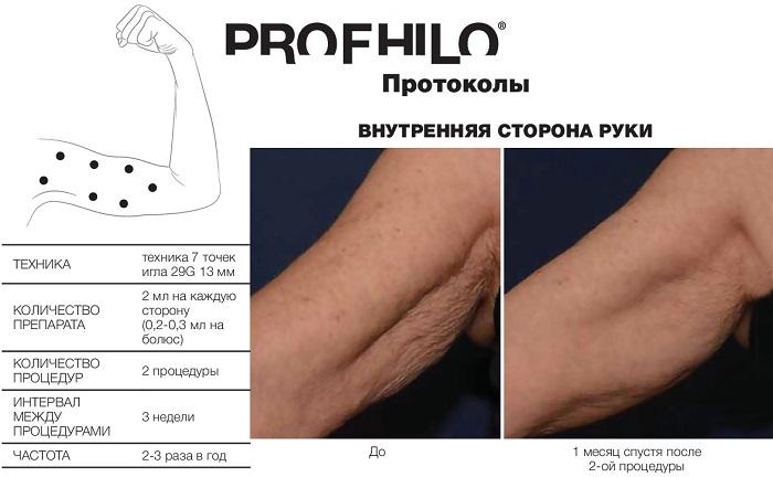 фото протокола инъекции профайло по внутренней поверхности плеча