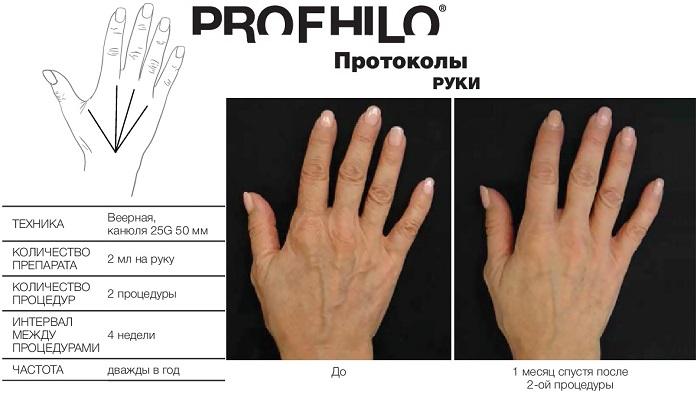 фото протокола инъекций профайло (profhilo ibsa) в кисти рук