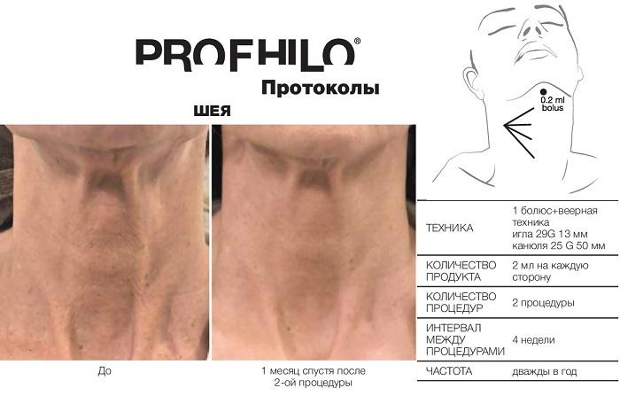 фото протокола инъекций профайло в зоне шеи
