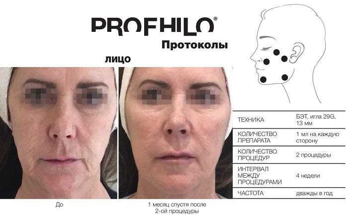 фото протокола инъекций profhilo в зоне лица в Краснодаре